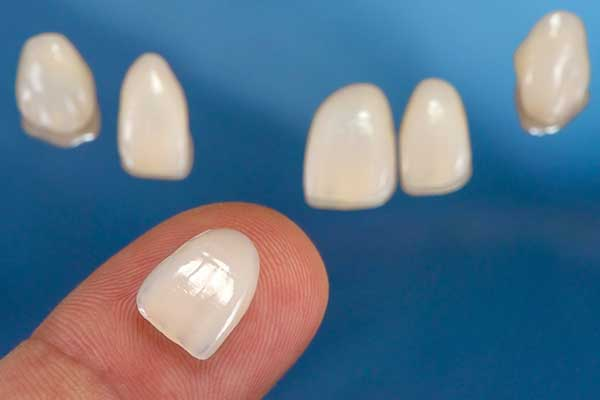 Porcelain Veneers in Manhattan, NY