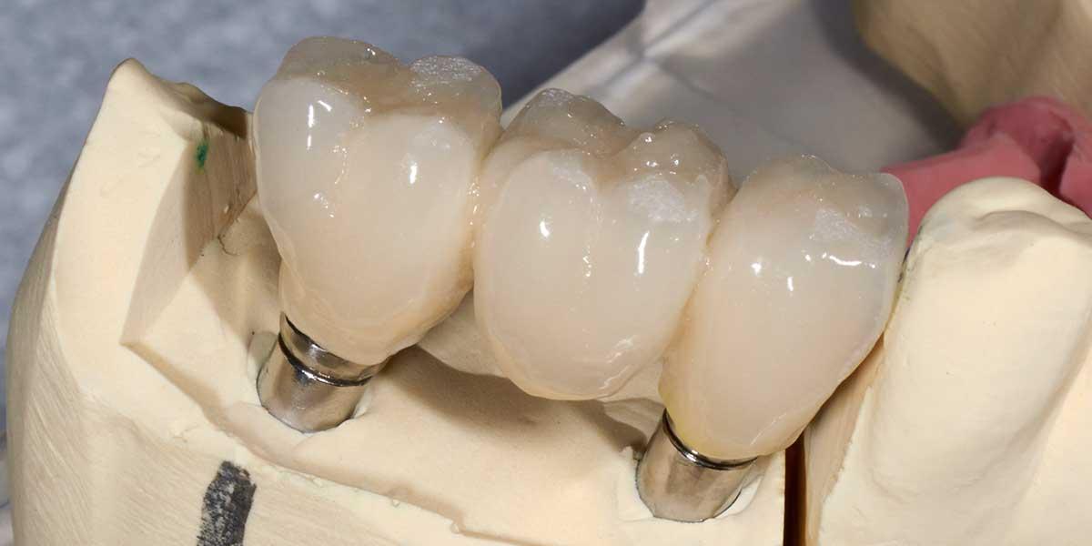 W. Village Dental Implant Supported Bridges
