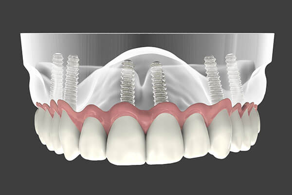 Implant Supported Dentures in Manhattan