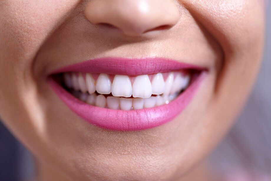 Close Up Of Girl's Smile And White Teeth After Cosmetic Dental Work