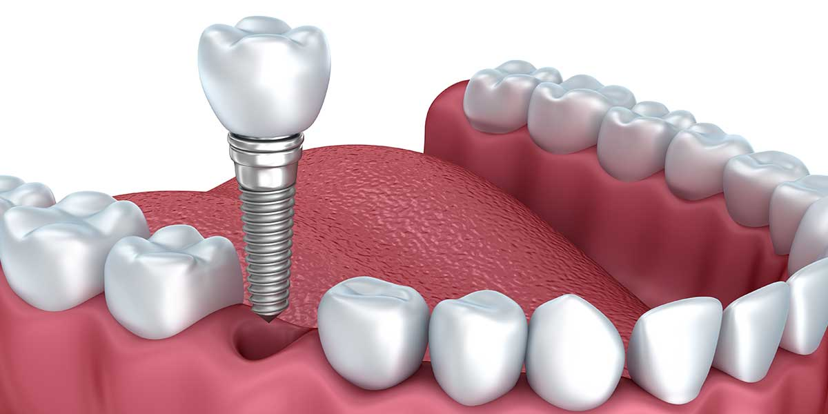 Single Dental Implants in the West Village