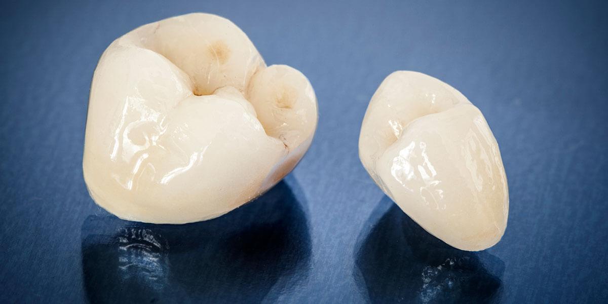 Dental Crowns in West Village, NYC