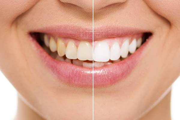 Before & After Teeth Whitening in Manhattan
