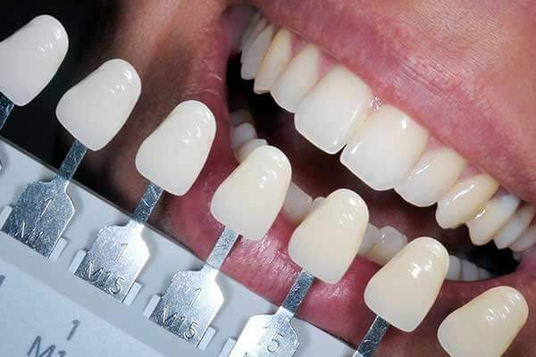 Tooth Shade Guide