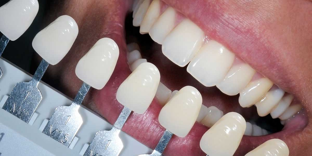 Composite White Fillings in NYC