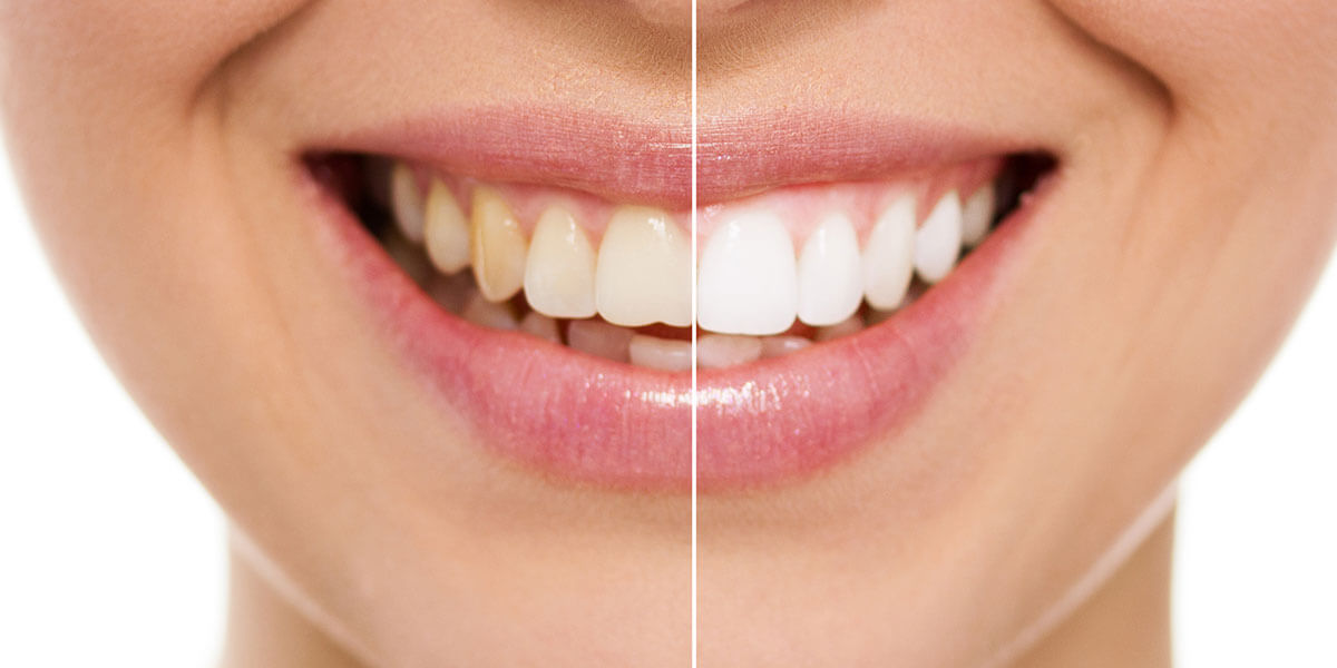 Before and After Teeth Whitening in NYC